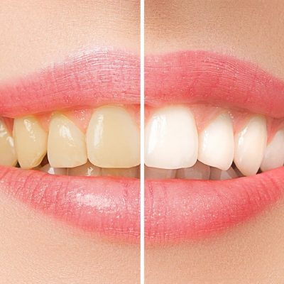 memphis-cosmetic-dentistry-experts